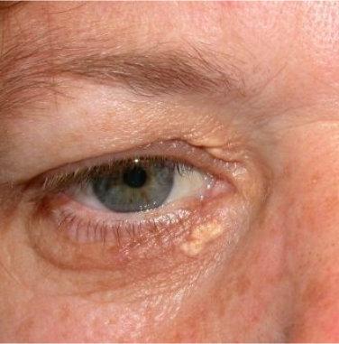 Xanthelasma and Xanthoma – Skin Hub