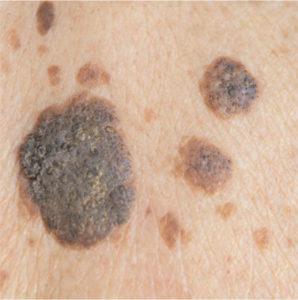 Seborrhoeic Keratosis treatment in WInchester (senile wart)